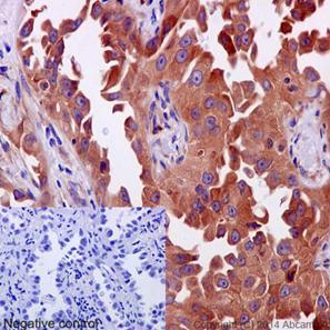 Immunohistochemistry (Formalin/PFA-fixed paraffin-embedded sections) - Anti-ERp72 antibody [EPR14824(B)] (ab190348)