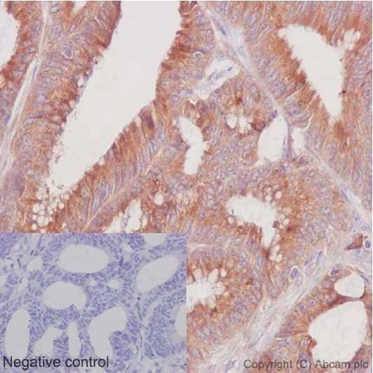 Immunohistochemistry (Formalin/PFA-fixed paraffin-embedded sections) - Anti-ERp72 antibody [EPR14825] - C-terminal (ab190354)