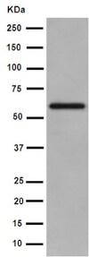 Western blot - Anti-IL-23 antibody [EPR5585(N)] - C-terminal (ab190356)