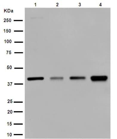 Western blot - Anti-SERPINB1/PI2 antibody [EPR13299] - Membrane Vesicle Marker (ab190357)