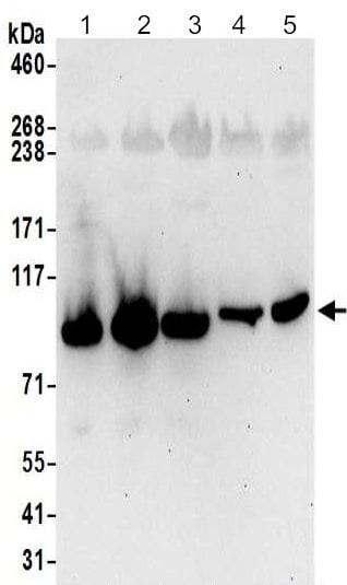 Western blot - Anti-LAS1L antibody - C-terminal (ab190390)