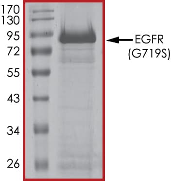 SDS-PAGE - Recombinant human EGFR (mutated G719 S) protein (ab190393)
