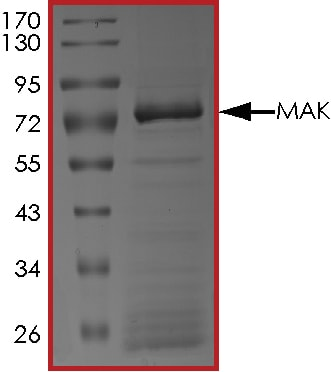 SDS-PAGE - Recombinant human MAK protein (ab190407)