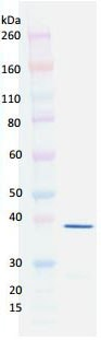 Western blot - Recombinant LukD protein (ab190423)