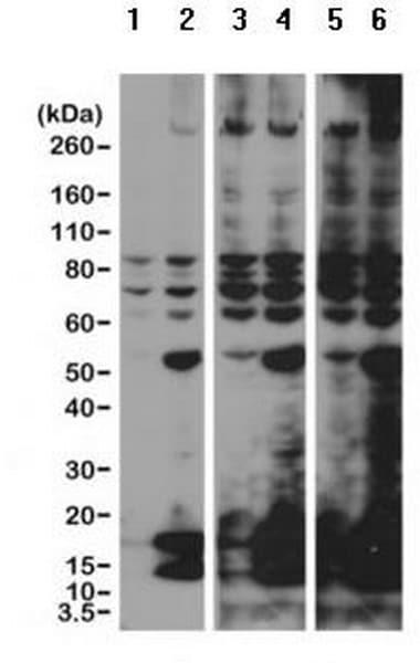 Western blot - Anti-acetyl Lysine antibody [RM101] (ab190479)
