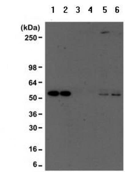 Immunoprecipitation - Anti-acetyl Lysine antibody [RM101] (ab190479)