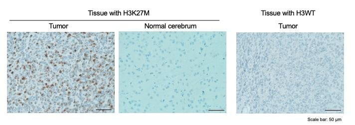 Immunohistochemistry (Formalin/PFA-fixed paraffin-embedded sections) - Anti-Histone H3 (mutated K27M) antibody [EPR18340] - ChIP Grade (ab190631)