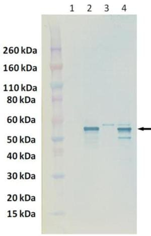 Western blot - Anti-Nucleoprotein Crimean-Congo hemorrhagic fever virus  antibody (ab190657)