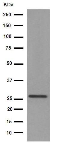 Western blot - Anti-Cardiac Troponin I (phospho S22 + S23) antibody [EPR1059(2)] (ab190697)