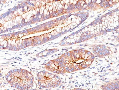 Immunohistochemistry (Formalin/PFA-fixed paraffin-embedded sections) - Anti-CEACAM1 + CEACAM5 antibody [C66/261] (ab190718)