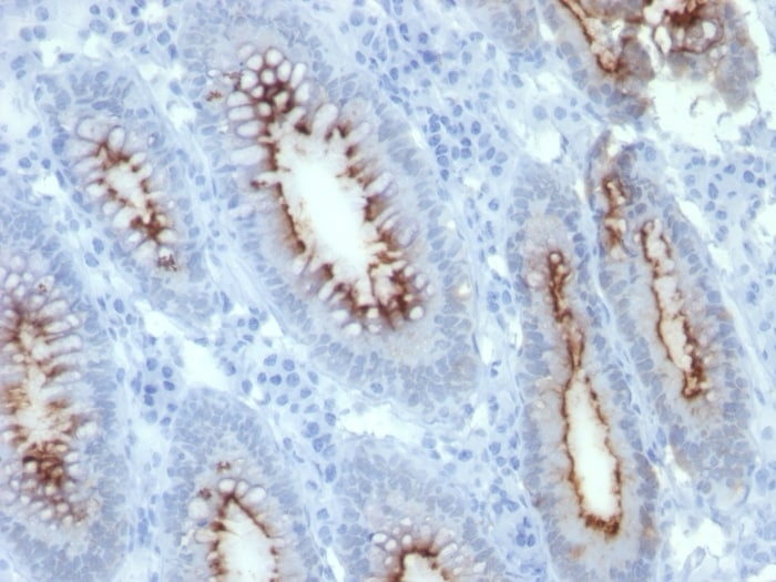 Immunohistochemistry (Formalin/PFA-fixed paraffin-embedded sections) - Anti-CEACAM1 + CEACAM5 antibody [C66/261] (ab190718)