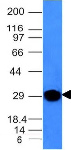 Western blot - Anti-Kappa light chain antibody [KLC264] (ab190760)