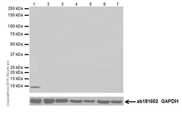 Western blot - Anti-Hepcidin + Hepcidin-2 antibody [EPR18937] (ab190775)