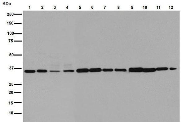 Western blot - Anti-OLF1 antibody [EPR15972] (ab190792)