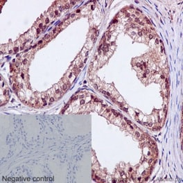 Immunohistochemistry (Formalin/PFA-fixed paraffin-embedded sections) - Anti-TBLR1/TBL1XR1 antibody [EPR16153] (ab190796)