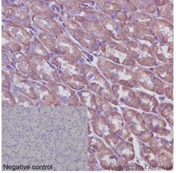Immunohistochemistry (Formalin/PFA-fixed paraffin-embedded sections) - Anti-ABCF1 antibody [EPR16068] - C-terminal (ab190798)