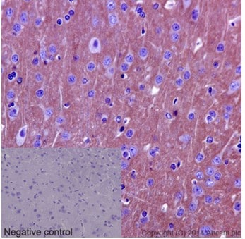 Immunohistochemistry (Formalin/PFA-fixed paraffin-embedded sections) - Anti-C10orf46/CAC1 antibody [EPR16094] (ab190799)