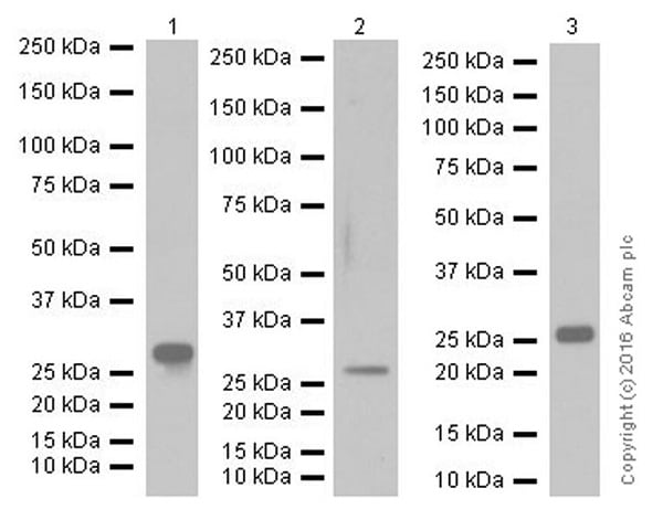 Western blot - Anti-Mannan Binding Lectin/MBL antibody [EPR18381-156] (ab190834)