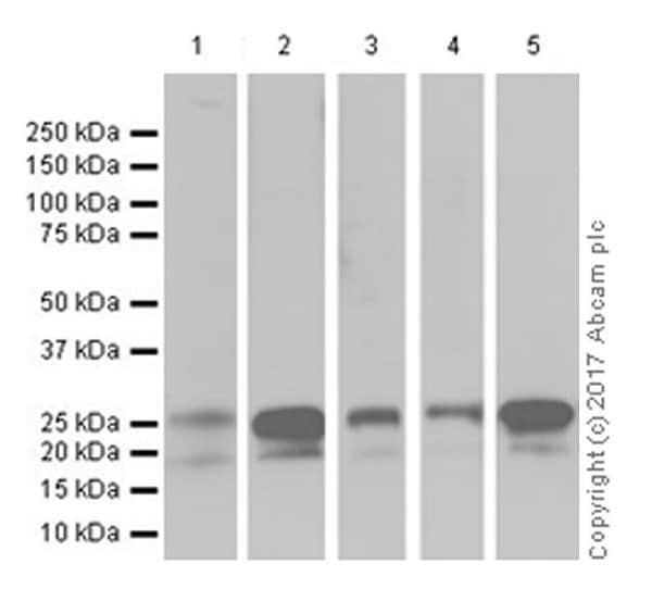 Western blot - Anti-p27 KIP 1 antibody [EPR18388-138] (ab190851)