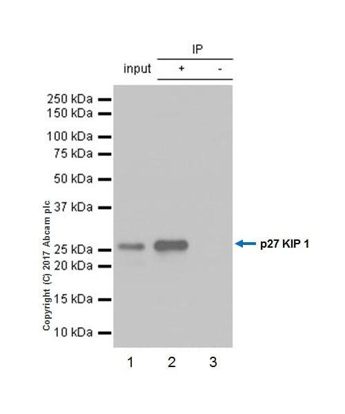 Immunoprecipitation - Anti-p27 KIP 1 antibody [EPR18388-138] (ab190851)
