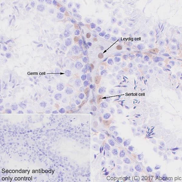 Immunohistochemistry (Formalin/PFA-fixed paraffin-embedded sections) - Anti-p27 KIP 1 antibody [EPR18388-138] (ab190851)