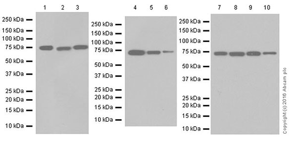 Western blot - Anti-BS69 antibody [EP18343] - ChIP Grade (ab190890)