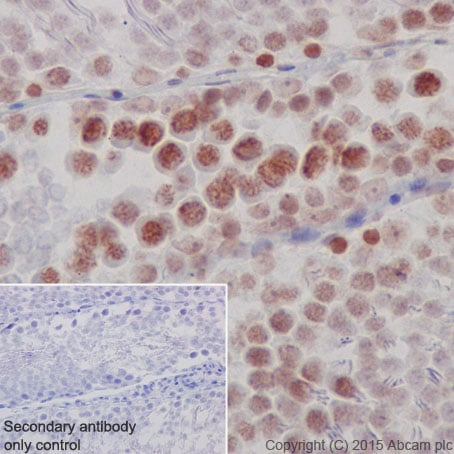 Immunohistochemistry (Formalin/PFA-fixed paraffin-embedded sections) - Anti-KAT7 / Hbo1 / MYST2 antibody [EPR18473] (ab190908)