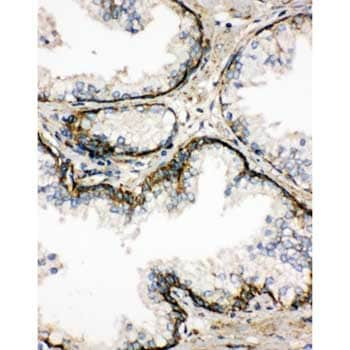 Immunohistochemistry (Formalin/PFA-fixed paraffin-embedded sections) - Anti-SSR3 antibody - N-terminal (ab190936)