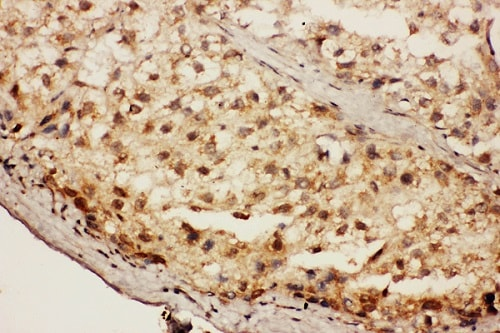 Immunohistochemistry (Formalin/PFA-fixed paraffin-embedded sections) - Anti-CacyBP antibody (ab190950)