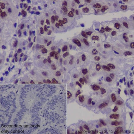 Immunohistochemistry (Formalin/PFA-fixed paraffin-embedded sections) - Anti-TDP43 antibody [EPR18554] (ab190963)