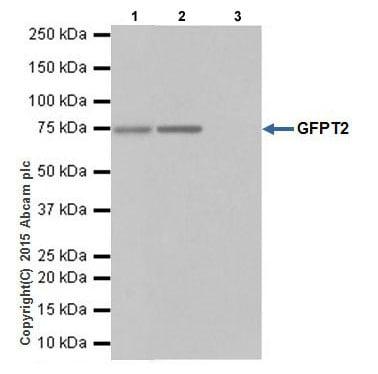Immunoprecipitation - Anti-GFPT2 antibody [EPR19095] (ab190966)