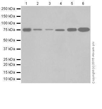 Western blot - Anti-GFPT2 antibody [EPR19095] (ab190966)