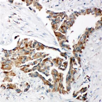 Immunohistochemistry (Formalin/PFA-fixed paraffin-embedded sections) - Anti-TRAM1 antibody - C-terminal (ab190982)