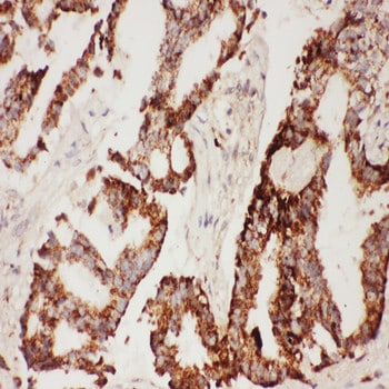 Immunohistochemistry (Formalin/PFA-fixed paraffin-embedded sections) - Anti-CNTF antibody (ab190985)