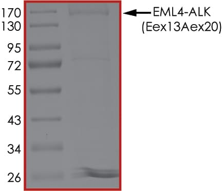 SDS-PAGE - Recombinant human ALK + EML4 protein (ab190998)