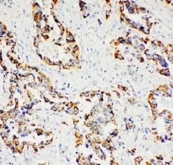 Immunohistochemistry (Formalin/PFA-fixed paraffin-embedded sections) - Anti-Paxillin antibody - C-terminal (ab191007)