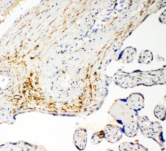 Immunohistochemistry (Formalin/PFA-fixed paraffin-embedded sections) - Anti-SLC16A4/MCT4 antibody - N-terminal (ab191008)