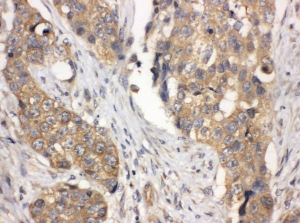 Immunohistochemistry (Formalin/PFA-fixed paraffin-embedded sections) - Anti-LASP1 antibody - N-terminal (ab191022)