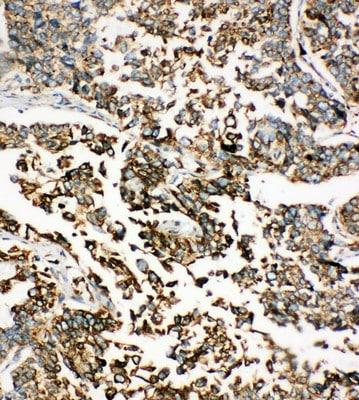Immunohistochemistry (Formalin/PFA-fixed paraffin-embedded sections) - Anti-GRP78 BiP antibody - C-terminal (ab191023)