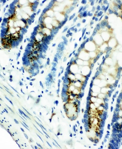 Immunohistochemistry (Formalin/PFA-fixed paraffin-embedded sections) - Anti-Smad4 antibody - N-terminal (ab191026)