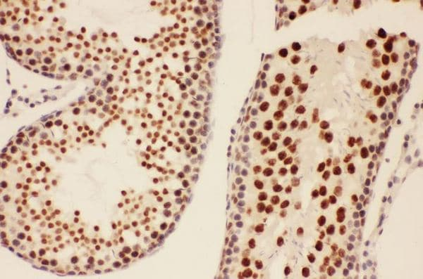 Immunohistochemistry (Formalin/PFA-fixed paraffin-embedded sections) - Anti-BRCA1 antibody - C-terminal (ab191042)