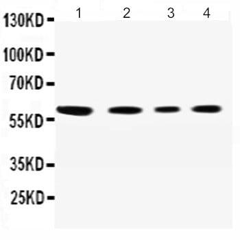 Western blot - Anti-SynCAM/CADM1 antibody - N-terminal (ab191046)