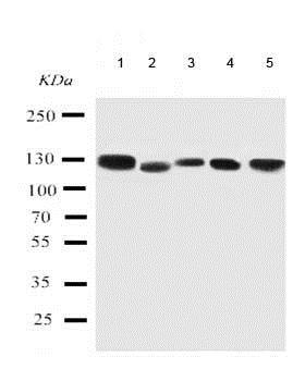 Western blot - Anti-RGS3 antibody - C-terminal (ab191047)