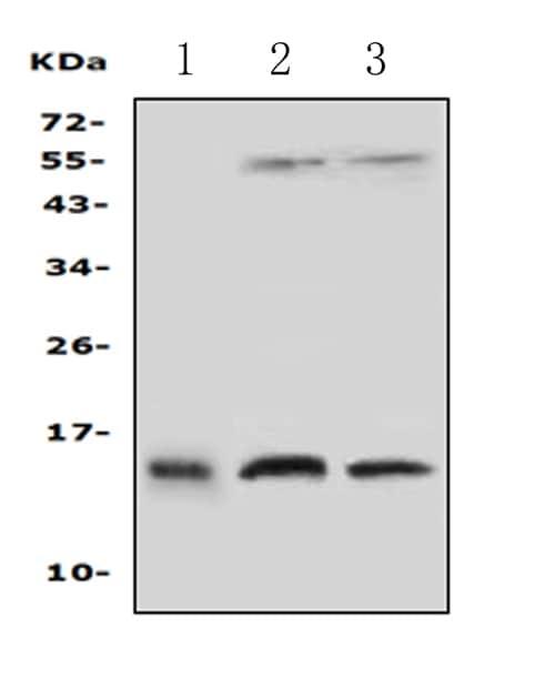 Western blot - Anti-Profilin 2 antibody - C-terminal (ab191054)