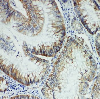 Immunohistochemistry (Formalin/PFA-fixed paraffin-embedded sections) - Anti-FER antibody (ab191060)