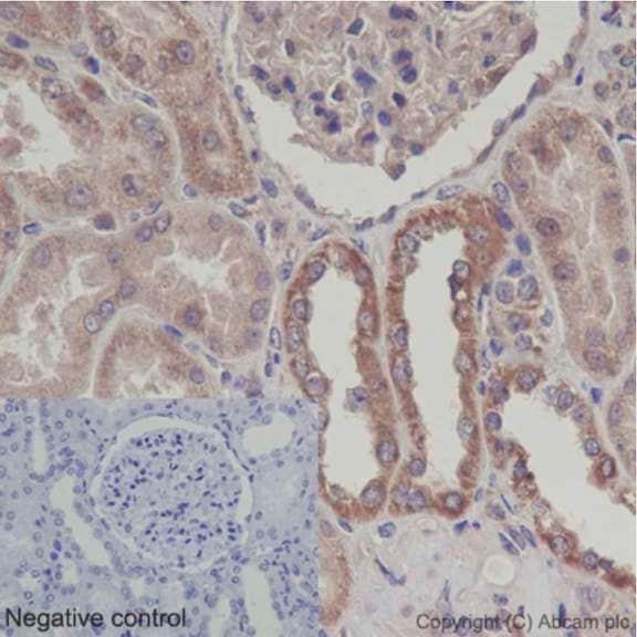 Immunohistochemistry (Formalin/PFA-fixed paraffin-embedded sections) - Anti-UQCRFS1/RISP antibody [EPR16288] (ab191078)