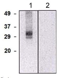 Western blot - Anti-CLIC5 antibody [CLIC502] (ab191102)