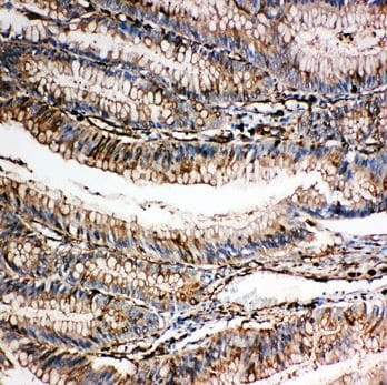 Immunohistochemistry (Formalin/PFA-fixed paraffin-embedded sections) - Anti-Gelsolin antibody - C-terminal (ab191134)