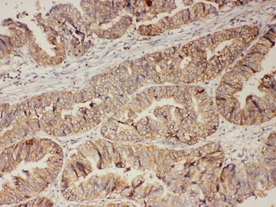 Immunohistochemistry (Formalin/PFA-fixed paraffin-embedded sections) - Anti-Progesterone Receptor antibody - C-terminal (ab191138)