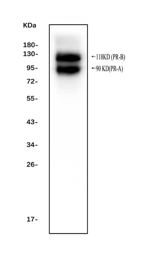 Western blot - Anti-Progesterone Receptor antibody - C-terminal (ab191138)